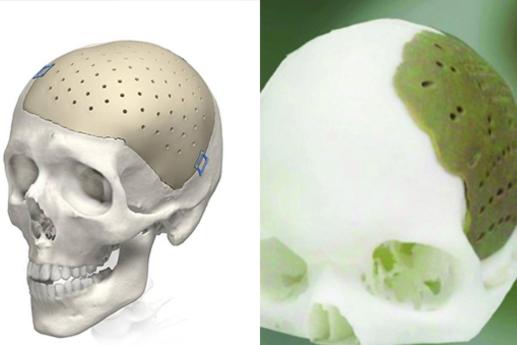 3D打印PEEK材料在医疗植入的应用-一迈智能